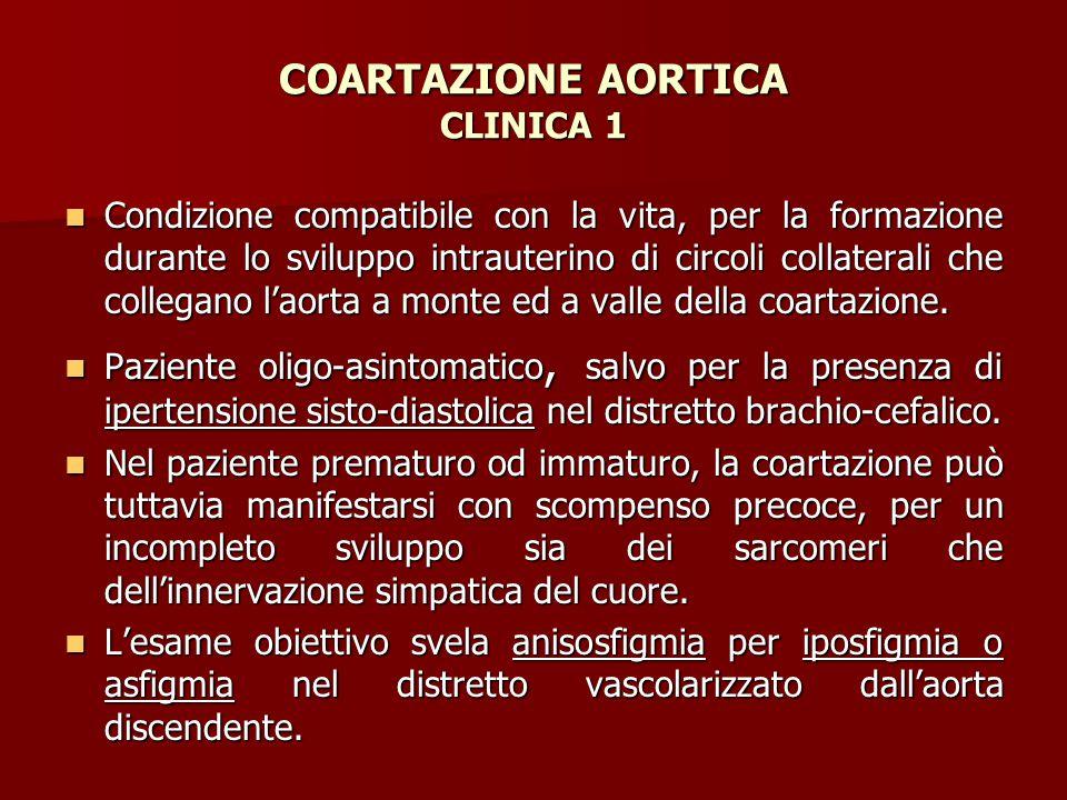 COARTAZIONE AORTICA CLINICA 1 Condizione compatibile con la vita, per la formazione durante lo sviluppo intrauterino di circoli collaterali che colleg
