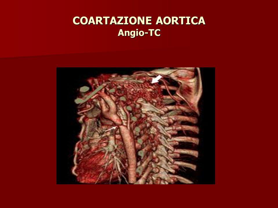 COARTAZIONE AORTICA Angio-TC