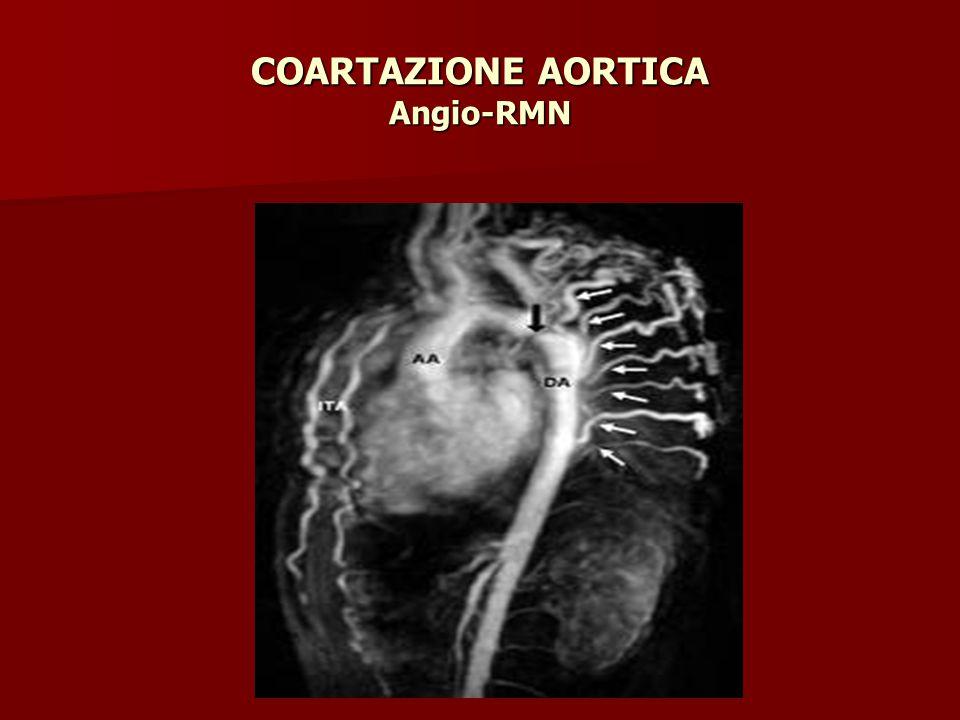 COARTAZIONE AORTICA Angio-RMN