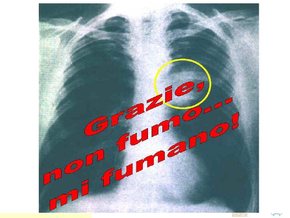 Torna alla prima pagina Apparato respiratorio n Il fumatore va incontro facilmente delle seguenti malattie : u LARINGITE CRONICA u TUMORE DELLA LARINGE u ASMA u BRONCHITE CRONICA u TUMORE AL POLMONE