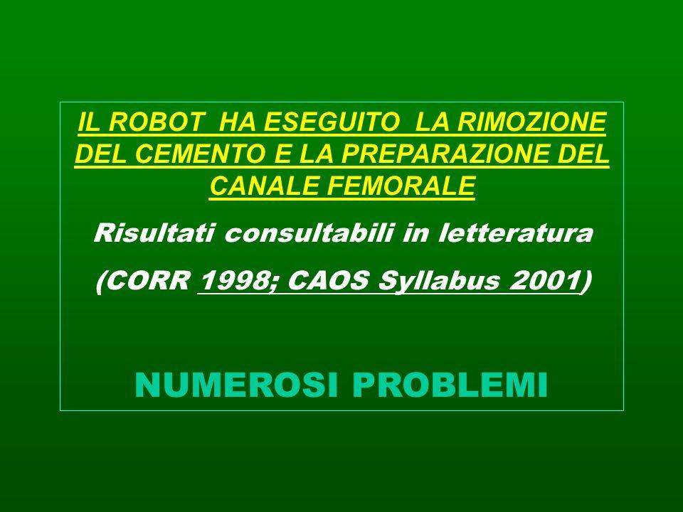 IL ROBOT HA ESEGUITO LA RIMOZIONE DEL CEMENTO E LA PREPARAZIONE DEL CANALE FEMORALE Risultati consultabili in letteratura (CORR 1998; CAOS Syllabus 20