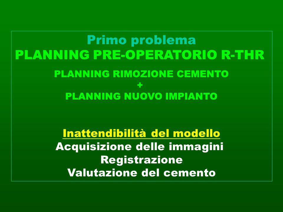 Primo problema PLANNING PRE-OPERATORIO R-THR PLANNING RIMOZIONE CEMENTO + PLANNING NUOVO IMPIANTO Inattendibilità del modello Acquisizione delle immag