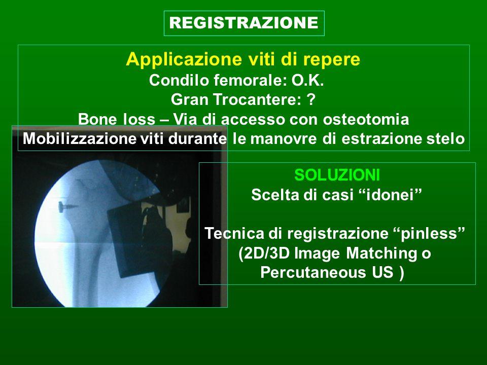 Applicazione viti di repere Condilo femorale: O.K. Gran Trocantere: ? Bone loss – Via di accesso con osteotomia Mobilizzazione viti durante le manovre