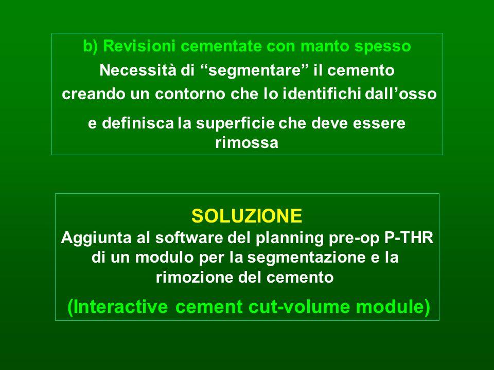 SOLUZIONE Aggiunta al software del planning pre-op P-THR di un modulo per la segmentazione e la rimozione del cemento (Interactive cement cut-volume m