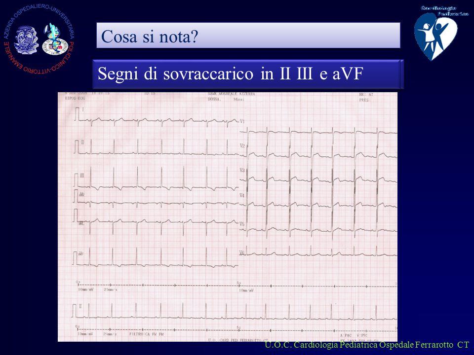 U.O.C. Cardiologia Pediatrica Ospedale Ferrarotto CT CMI CMI Di cosa si Tratta.