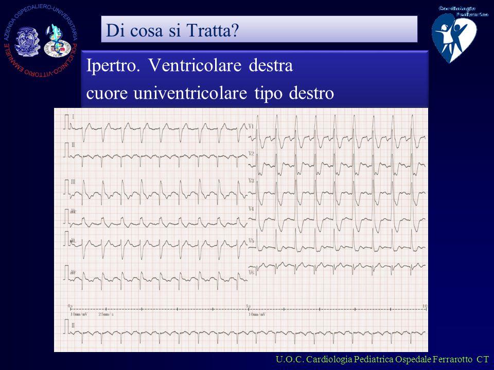 U.O.C. Cardiologia Pediatrica Ospedale Ferrarotto CT Ipertro.