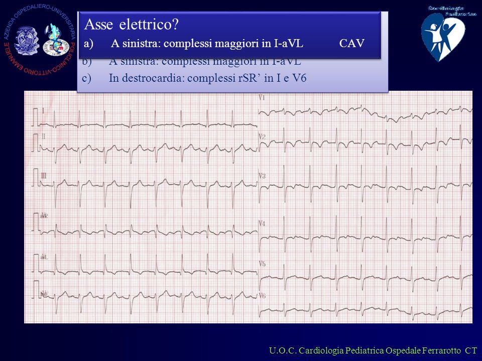 U.O.C. Cardiologia Pediatrica Ospedale Ferrarotto CT Lattante 2 mesi Asse elettrico.