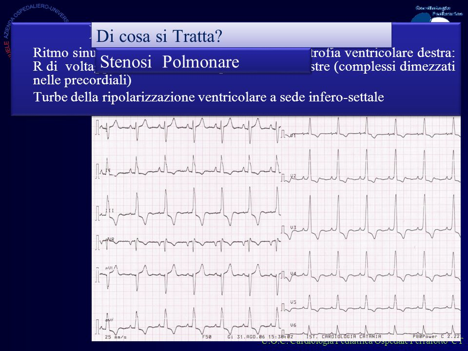 U.O.C. Cardiologia Pediatrica Ospedale Ferrarotto CT Come lo refertiamo.