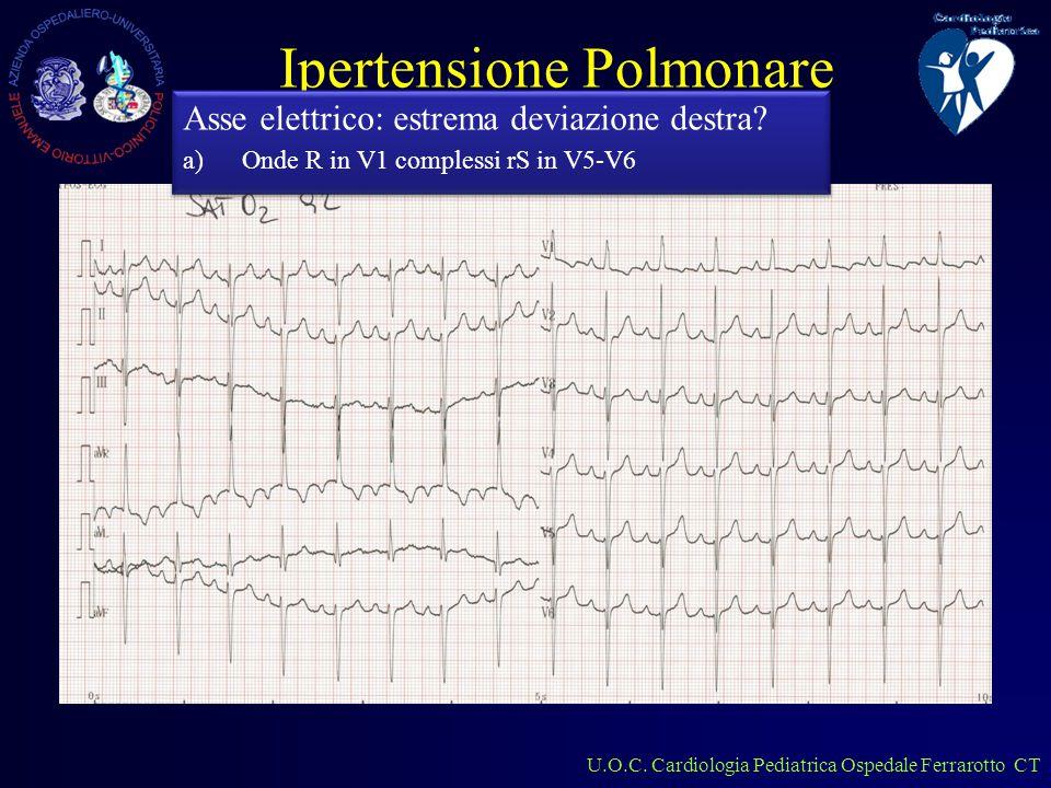 U.O.C. Cardiologia Pediatrica Ospedale Ferrarotto CT Ipertensione Polmonare Cosa si nota.