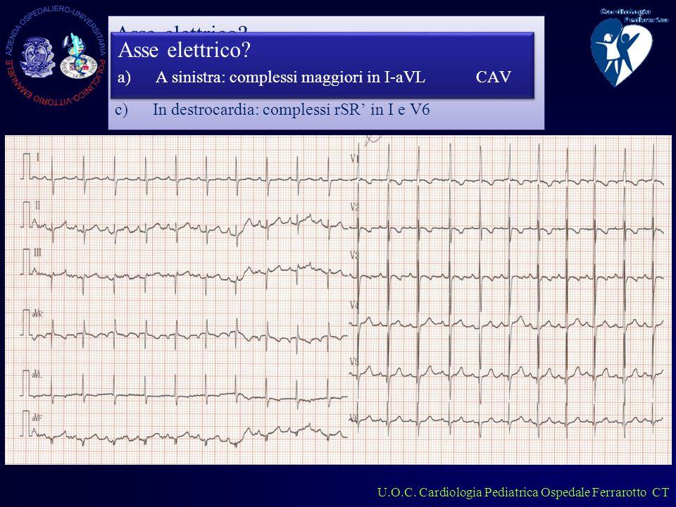 U.O.C. Cardiologia Pediatrica Ospedale Ferrarotto CT Lattante 1 mese Asse elettrico.