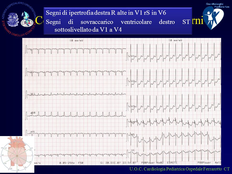 U.O.C.Cardiologia Pediatrica Ospedale Ferrarotto CT Ipertro.