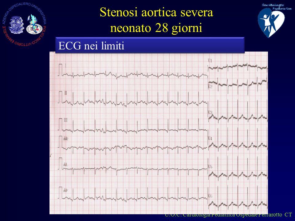 U.O.C.Cardiologia Pediatrica Ospedale Ferrarotto CT cosa si nota.