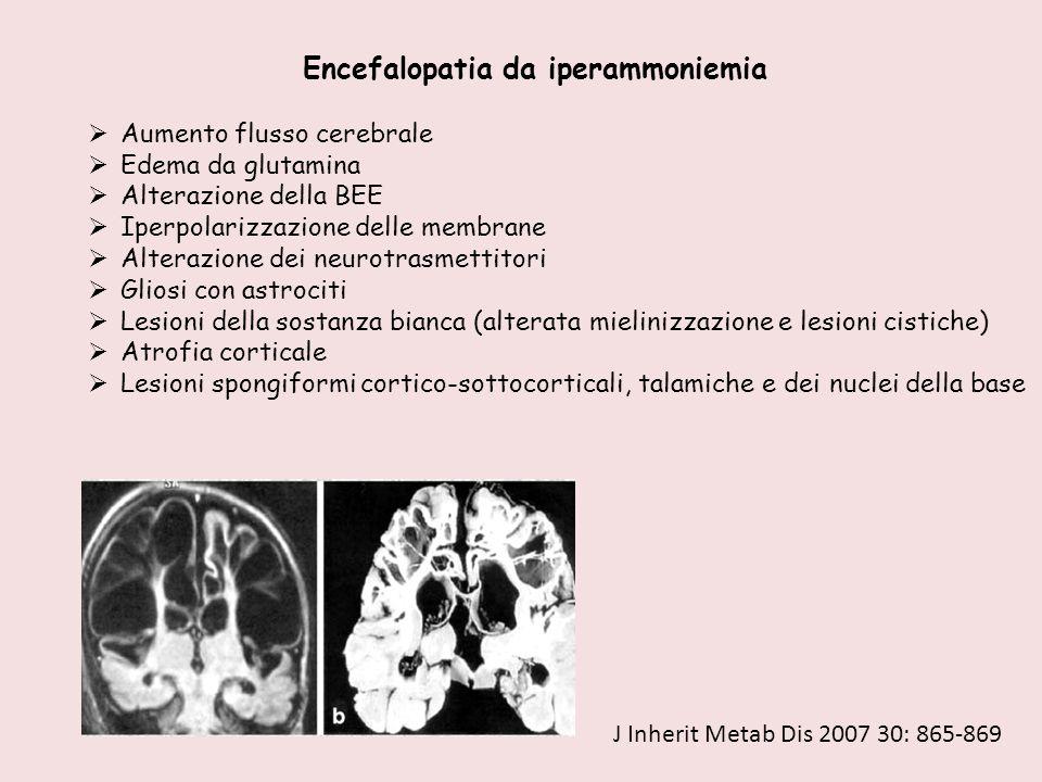 Encefalopatia da iperammoniemia  Aumento flusso cerebrale  Edema da glutamina  Alterazione della BEE  Iperpolarizzazione delle membrane  Alterazi