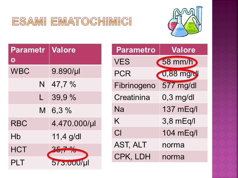 Parametr o Valore WBC9.890/µl N47,7 % L39,9 % M6,3 % RBC4.470.000/µl Hb11,4 g/dl HCT35,7 % PLT573.000/µl ParametroValore VES58 mm/h PCR0,88 mg/dl Fibr