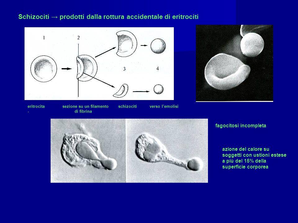 Schizociti → prodotti dalla rottura accidentale di eritrociti eritrocita sezione su un filamento schizociti verso l'emolisi - di fibrina fagocitosi in