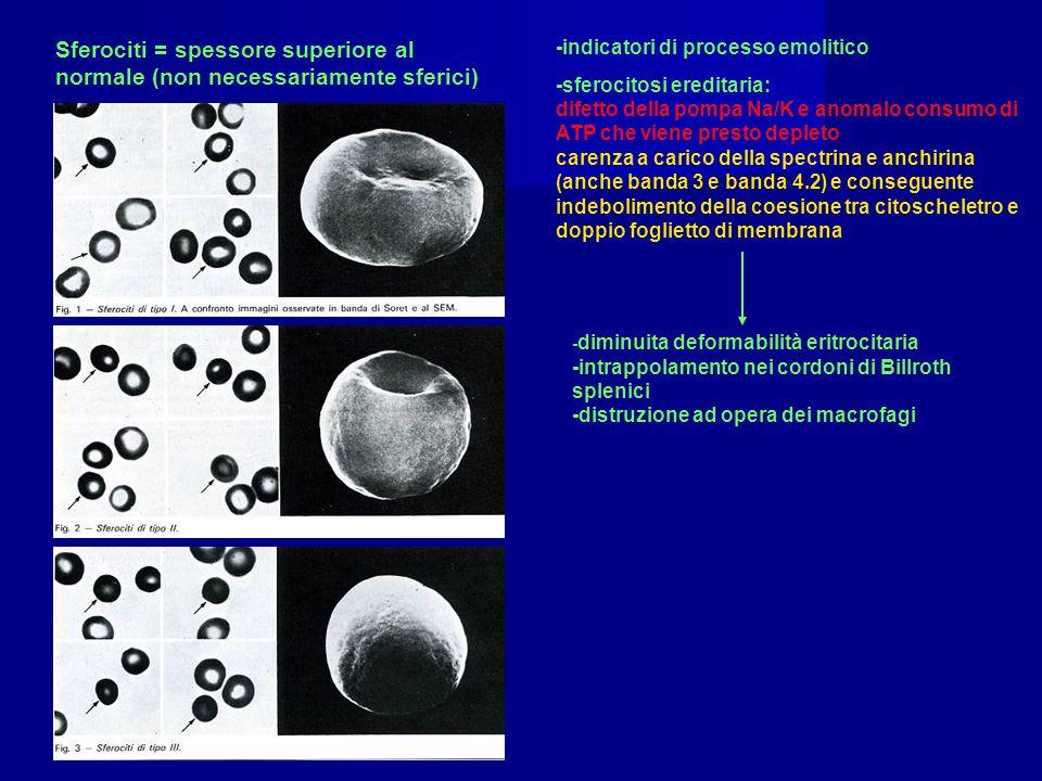 Sferociti = spessore superiore al normale (non necessariamente sferici) -indicatori di processo emolitico -sferocitosi ereditaria: difetto della pompa