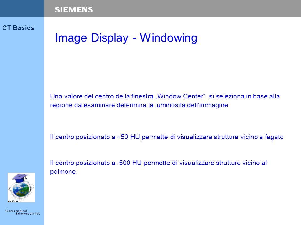 """CS TC 22 CT Basics Una valore del centro della finestra """"Window Center"""" si seleziona in base alla regione da esaminare determina la luminosità dell'im"""