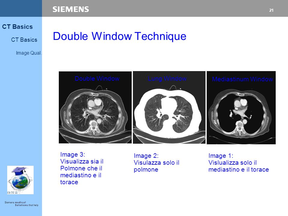 21 CT Basics Image Qual. CS TC 22 Lung Window Mediastinum Window Double Window Image 2: Visulazza solo il polmone Image 3: Visualizza sia il Polmone c