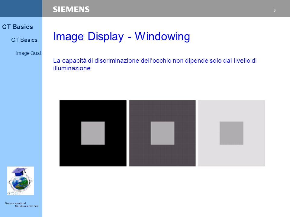 3 CT Basics Image Qual. CS TC 22 Image Display - Windowing La capacità di discriminazione dell'occhio non dipende solo dal livello di illuminazione