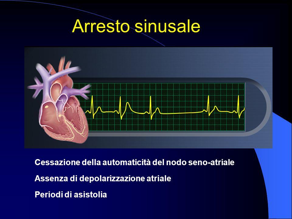 Arresto sinusale Cessazione della automaticità del nodo seno-atriale Assenza di depolarizzazione atriale Periodi di asistolia