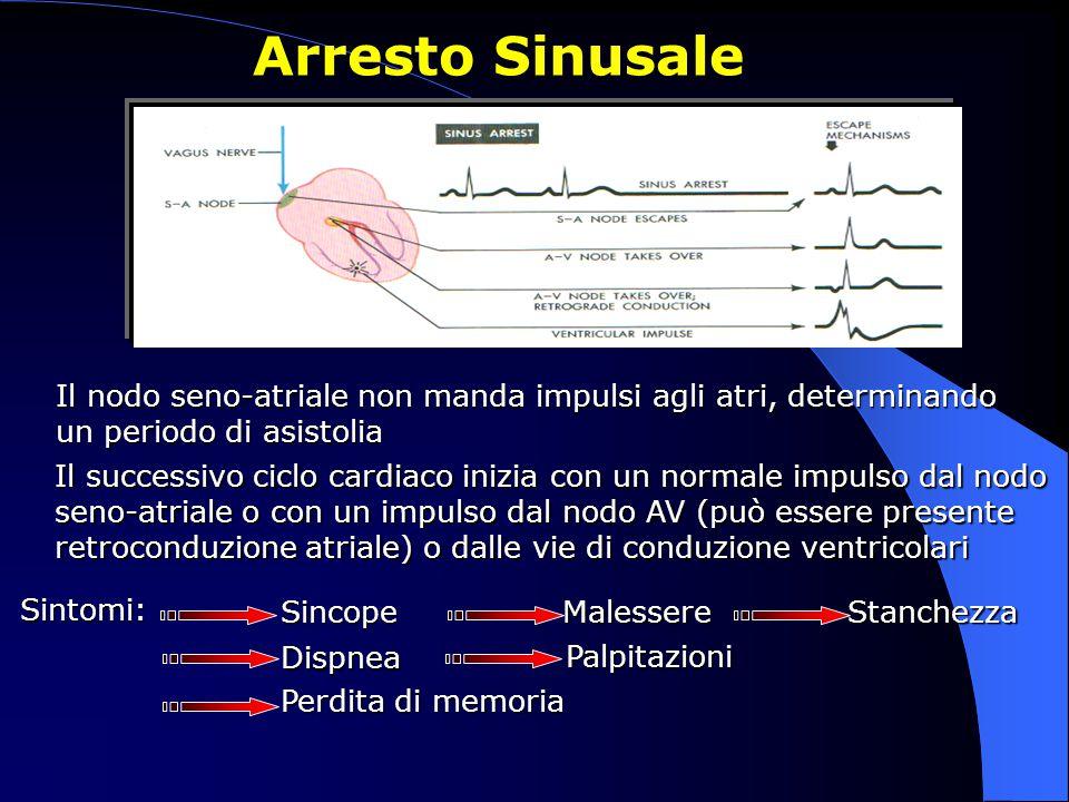 Arresto Sinusale Il nodo seno-atriale non manda impulsi agli atri, determinando un periodo di asistolia Il successivo ciclo cardiaco inizia con un nor