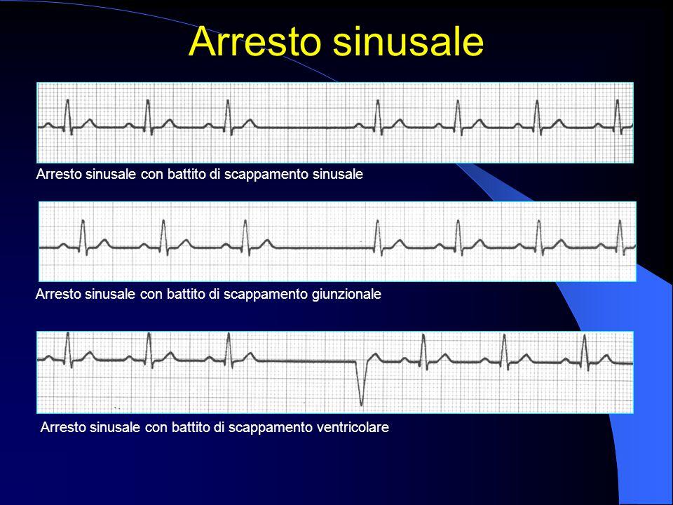 Arresto sinusale Arresto sinusale con battito di scappamento ventricolare Arresto sinusale con battito di scappamento sinusale Arresto sinusale con ba