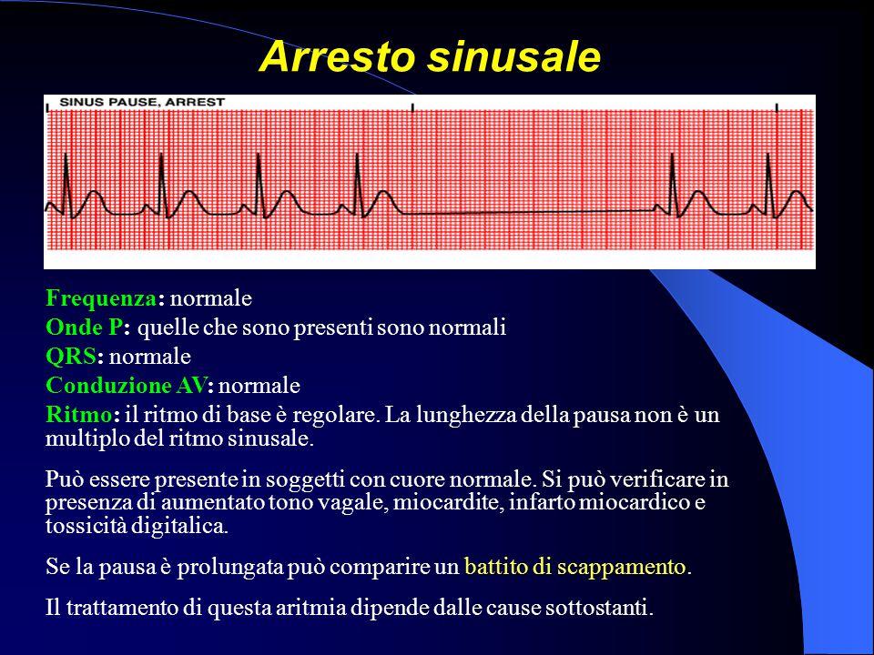Arresto sinusale Frequenza: normale Onde P: quelle che sono presenti sono normali QRS: normale Conduzione AV: normale Ritmo: il ritmo di base è regola