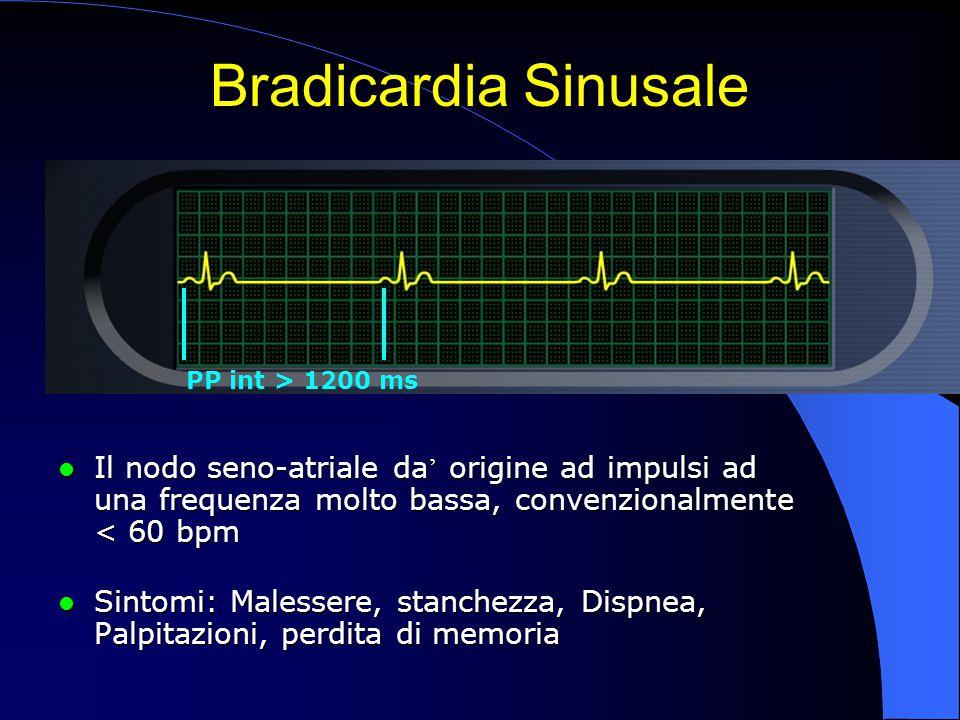 Il nodo seno-atriale da ' origine ad impulsi ad una frequenza molto bassa, convenzionalmente < 60 bpm Il nodo seno-atriale da ' origine ad impulsi ad