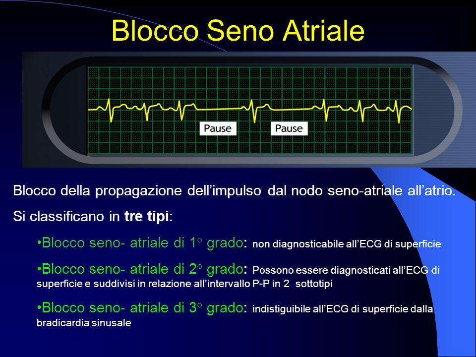 Blocco Seno Atriale Blocco della propagazione dell'impulso dal nodo seno-atriale all'atrio. Si classificano in tre tipi: Blocco seno- atriale di 1° gr