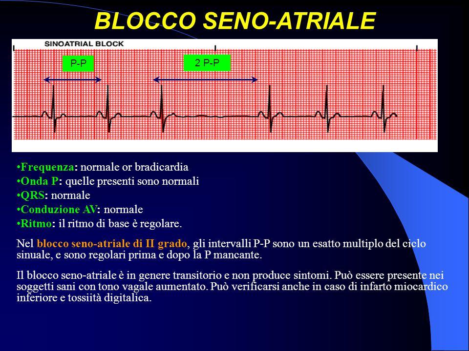 BLOCCO SENO-ATRIALE Frequenza: normale or bradicardia Onda P: quelle presenti sono normali QRS: normale Conduzione AV: normale Ritmo: il ritmo di base