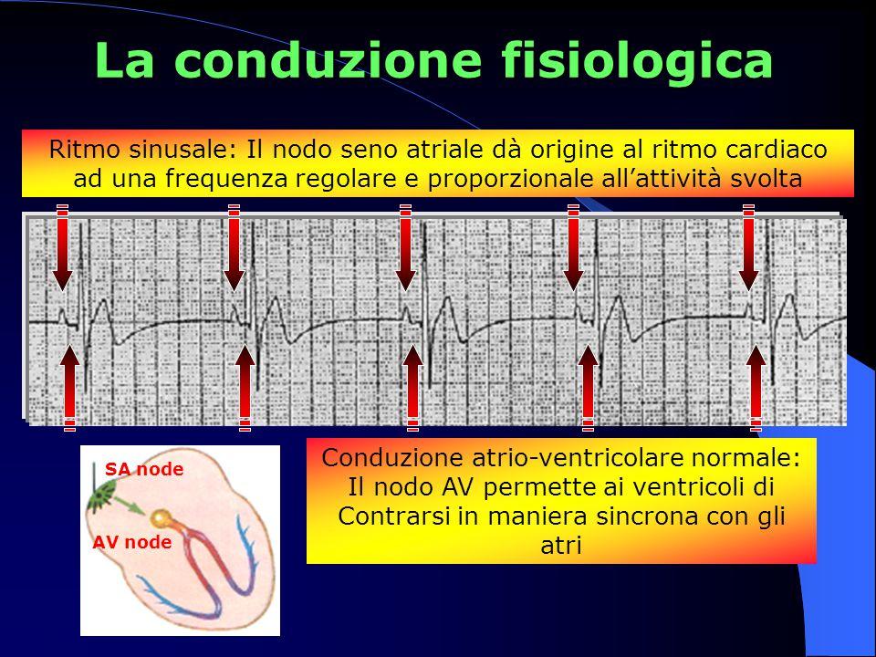 BLOCCO A-V DI PRIMO GRADO Intervallo PR > 200 ms Ogni onda P è seguita da un complesso QRS, MA è presente un ritardo un ritardo della conduzione attraverso il nodo AV - L'esempio mostra un intervallo PR di 320 ms Di solito non sono presenti sintomi