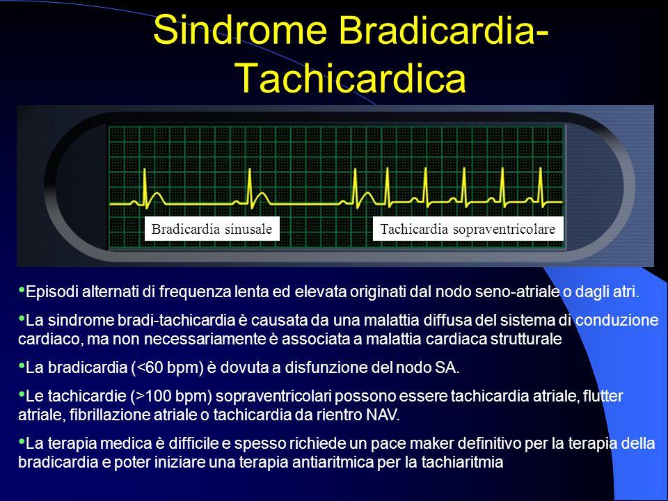 Sindrome Bradicardia - Tachicardica Episodi alternati di frequenza lenta ed elevata originati dal nodo seno-atriale o dagli atri. La sindrome bradi-ta