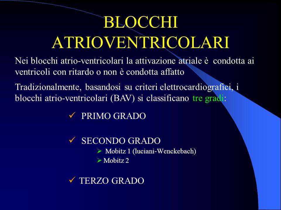 BLOCCHI ATRIOVENTRICOLARI PRIMO GRADO SECONDO GRADO  Mobitz 1 (luciani-Wenckebach)  Mobitz 2 TERZO GRADO Nei blocchi atrio-ventricolari la attivazio
