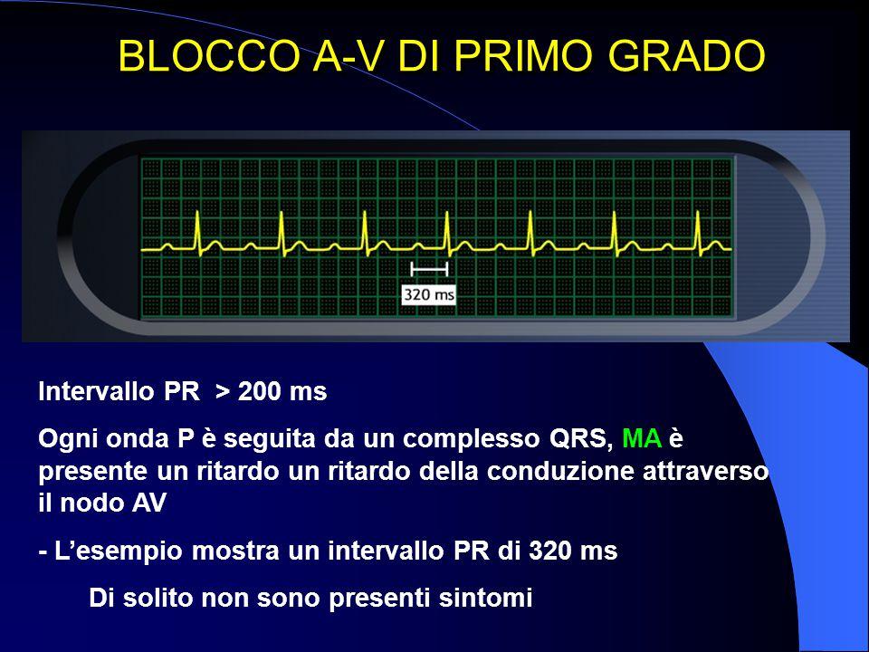 BLOCCO A-V DI PRIMO GRADO Intervallo PR > 200 ms Ogni onda P è seguita da un complesso QRS, MA è presente un ritardo un ritardo della conduzione attra