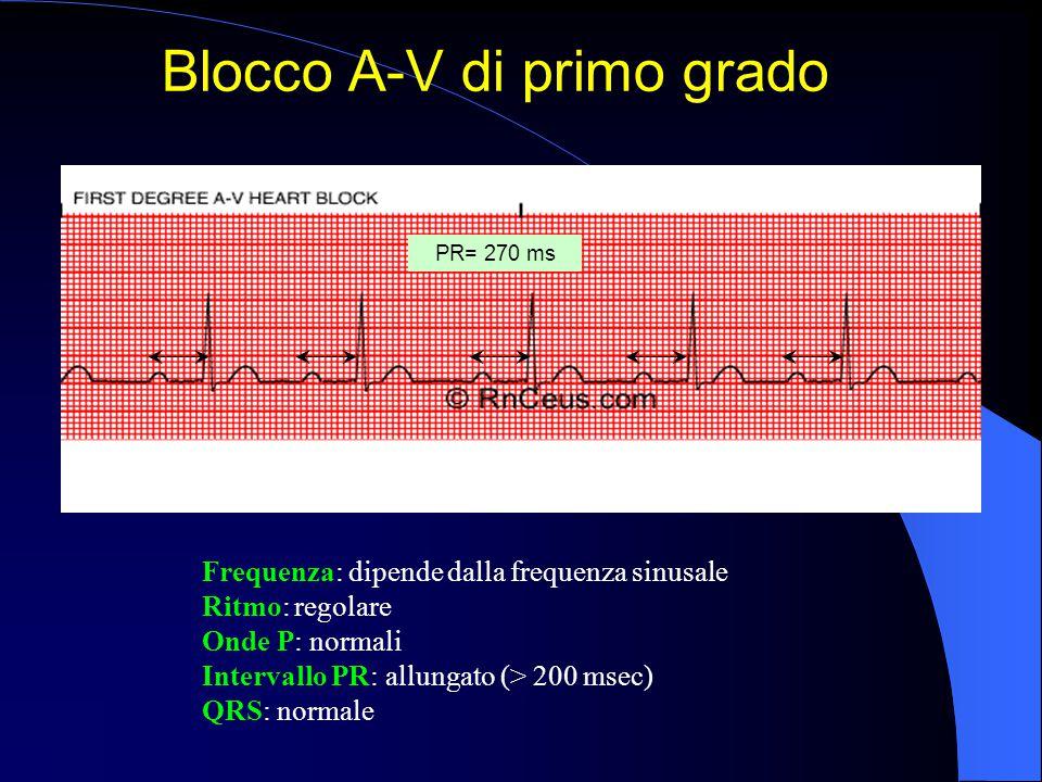 Frequenza: dipende dalla frequenza sinusale Ritmo: regolare Onde P: normali Intervallo PR: allungato (> 200 msec) QRS: normale Blocco A-V di primo gra