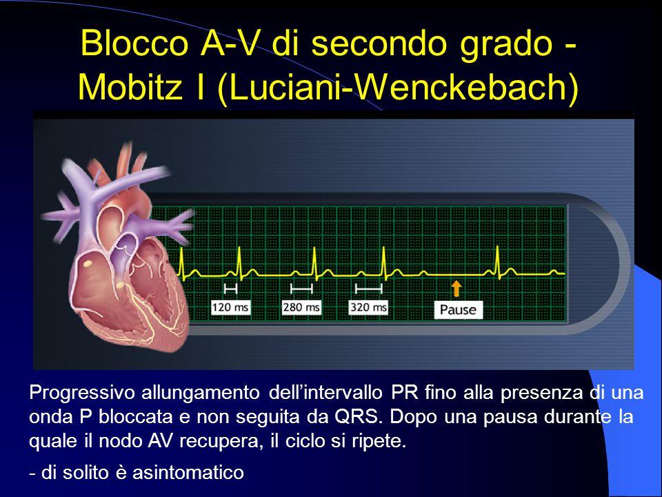 Blocco A-V di secondo grado - Mobitz I (Luciani-Wenckebach) Progressivo allungamento dell'intervallo PR fino alla presenza di una onda P bloccata e no