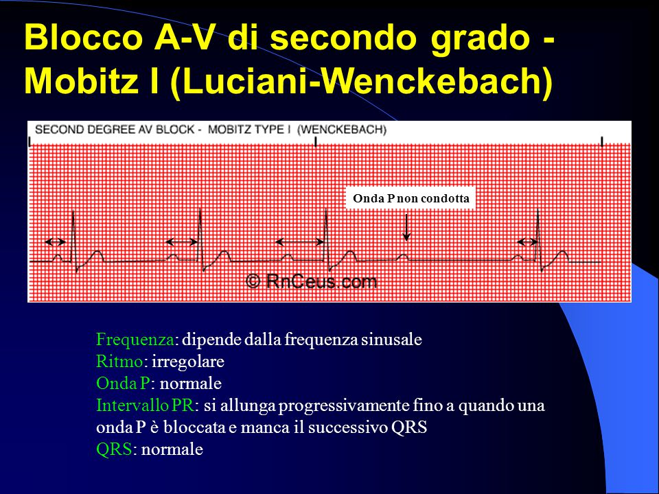Frequenza: dipende dalla frequenza sinusale Ritmo: irregolare Onda P: normale Intervallo PR: si allunga progressivamente fino a quando una onda P è bl