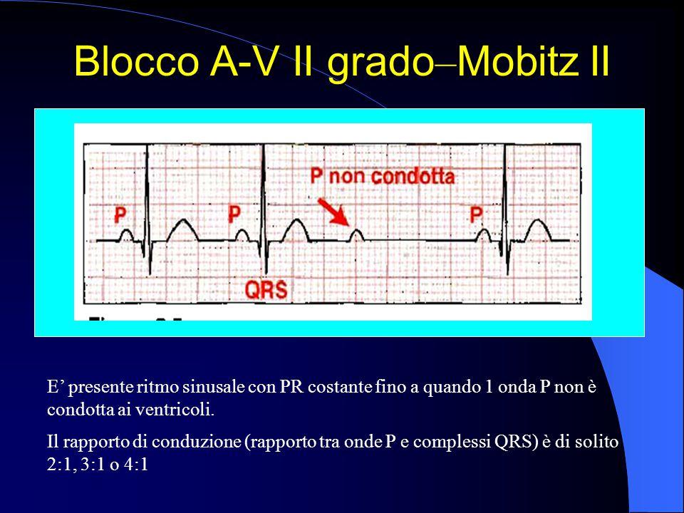 Blocco A-V II grado – Mobitz II E' presente ritmo sinusale con PR costante fino a quando 1 onda P non è condotta ai ventricoli. Il rapporto di conduzi
