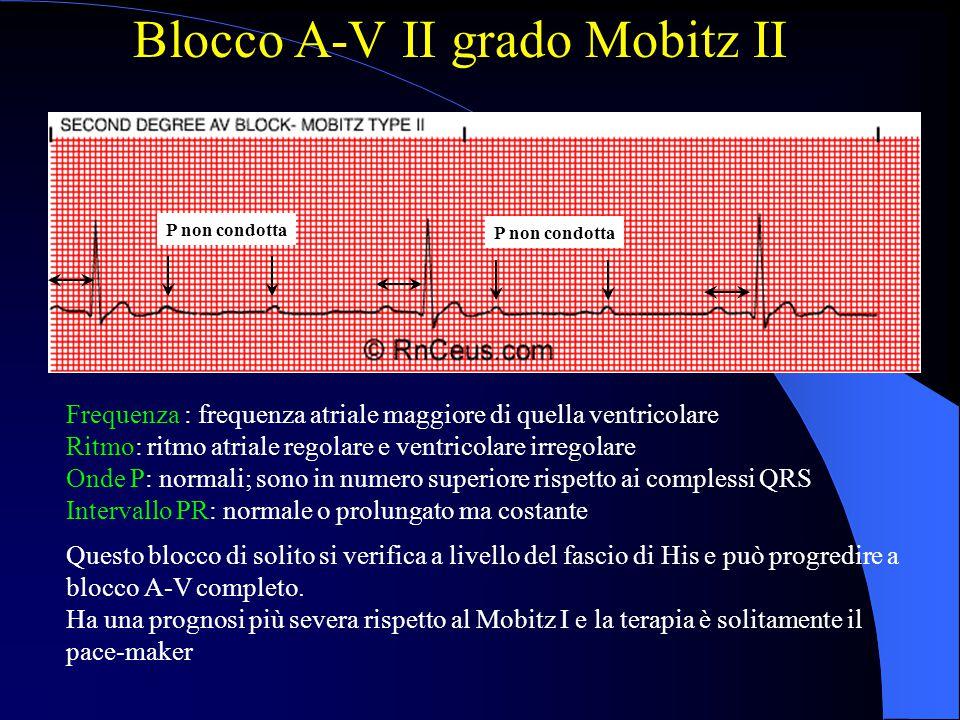 Blocco A-V II grado Mobitz II Frequenza : frequenza atriale maggiore di quella ventricolare Ritmo: ritmo atriale regolare e ventricolare irregolare On