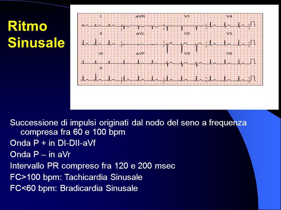 Ritmo Sinusale Successione di impulsi originati dal nodo del seno a frequenza compresa fra 60 e 100 bpm Onda P + in DI-DII-aVf Onda P – in aVr Interva