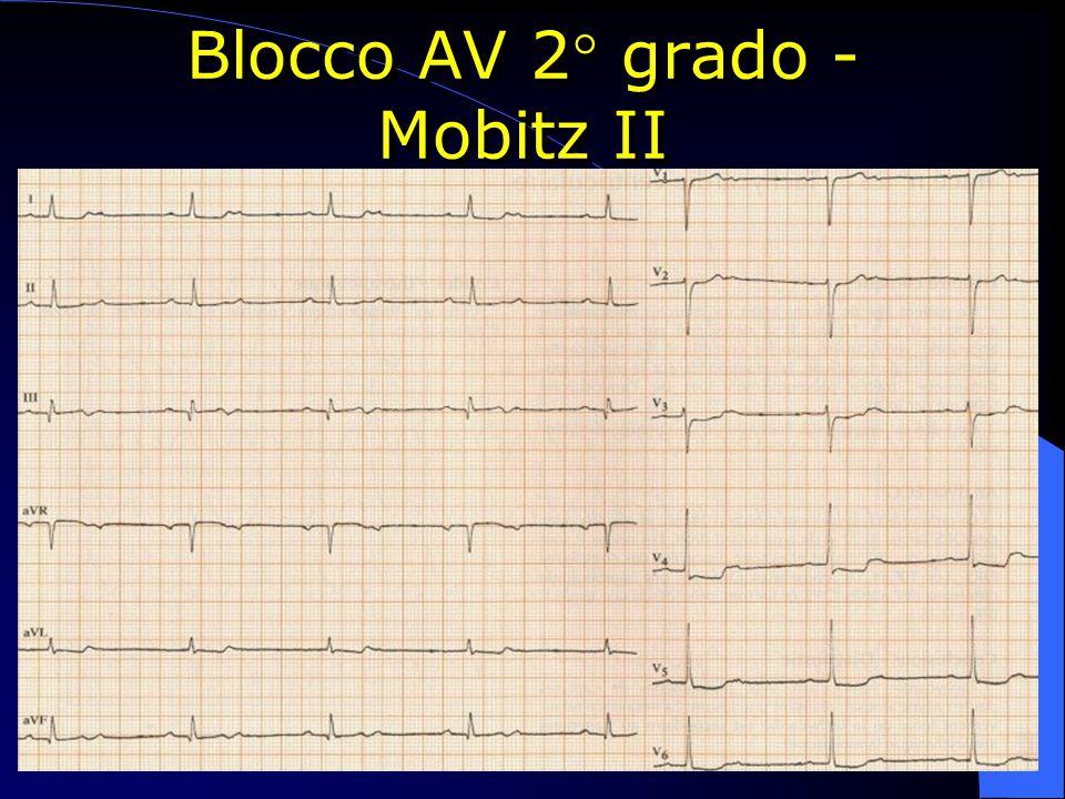 Blocco AV 2° grado - Mobitz II