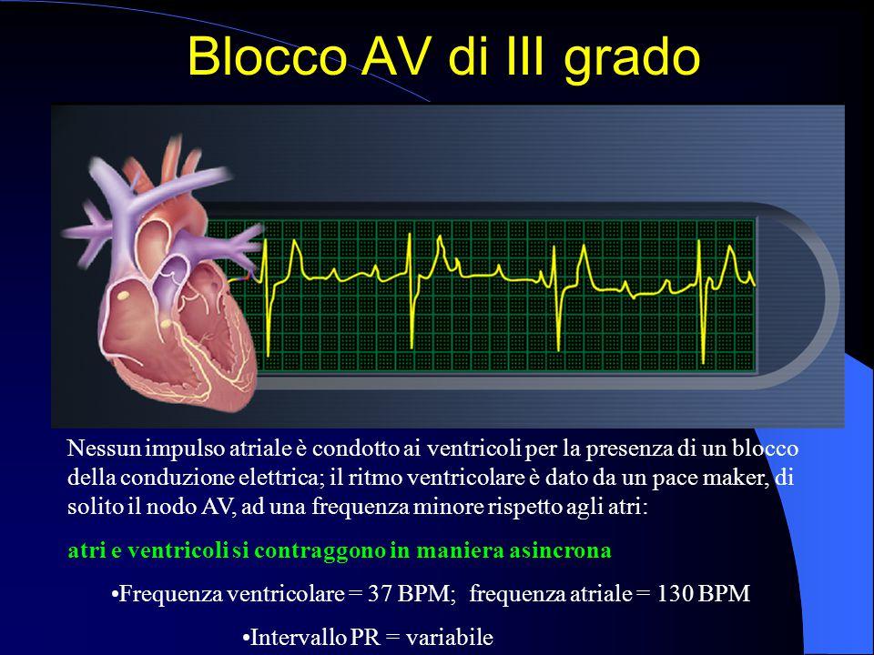 Blocco AV di III grado Nessun impulso atriale è condotto ai ventricoli per la presenza di un blocco della conduzione elettrica; il ritmo ventricolare