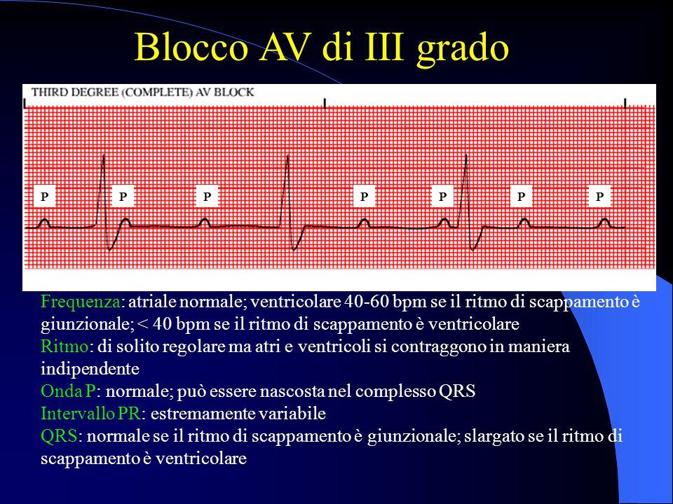 Blocco AV di III grado Frequenza: atriale normale; ventricolare 40-60 bpm se il ritmo di scappamento è giunzionale; < 40 bpm se il ritmo di scappament