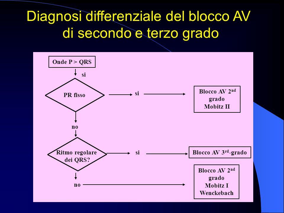 Onde P > QRS no Ritmo regolare dei QRS? no si Blocco AV 2 nd grado Mobitz II Blocco AV 2 nd grado Mobitz I Wenckebach PR fisso Blocco AV 3 rd -grado D