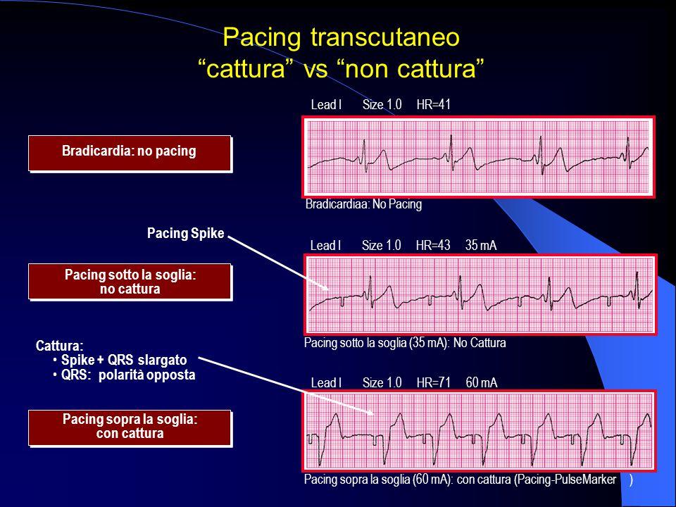 Pacing sotto la soglia: no cattura Pacing sopra la soglia: con cattura Pacing Spike Cattura: Spike + QRS slargato QRS: polarità opposta Lead I Size 1.