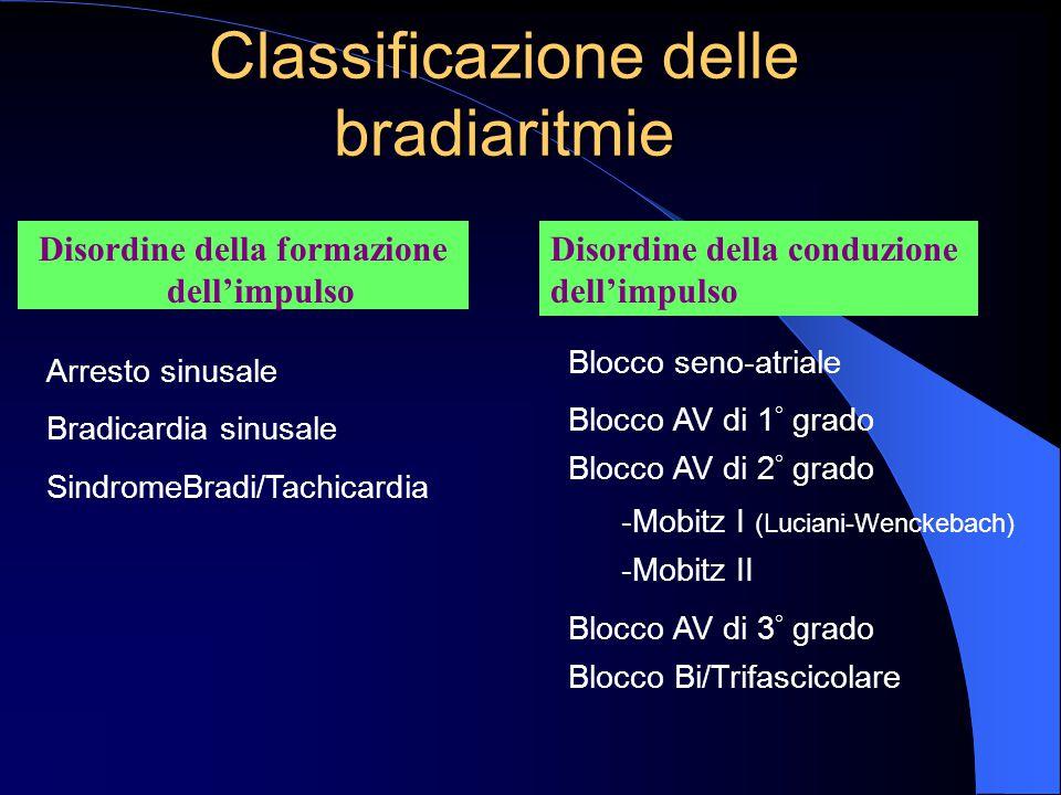 Disordine della formazione dell'impulso Classificazione delle bradiaritmie Arresto sinusale Bradicardia sinusale SindromeBradi/Tachicardia Blocco seno