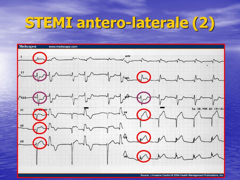 STEMI antero-laterale (2)