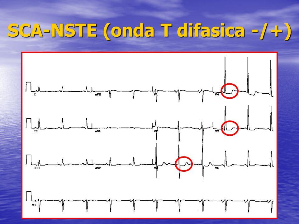SCA-NSTE (onda T difasica -/+)