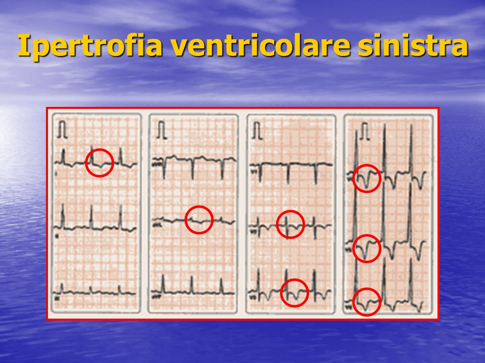 Ipertrofia ventricolare sinistra