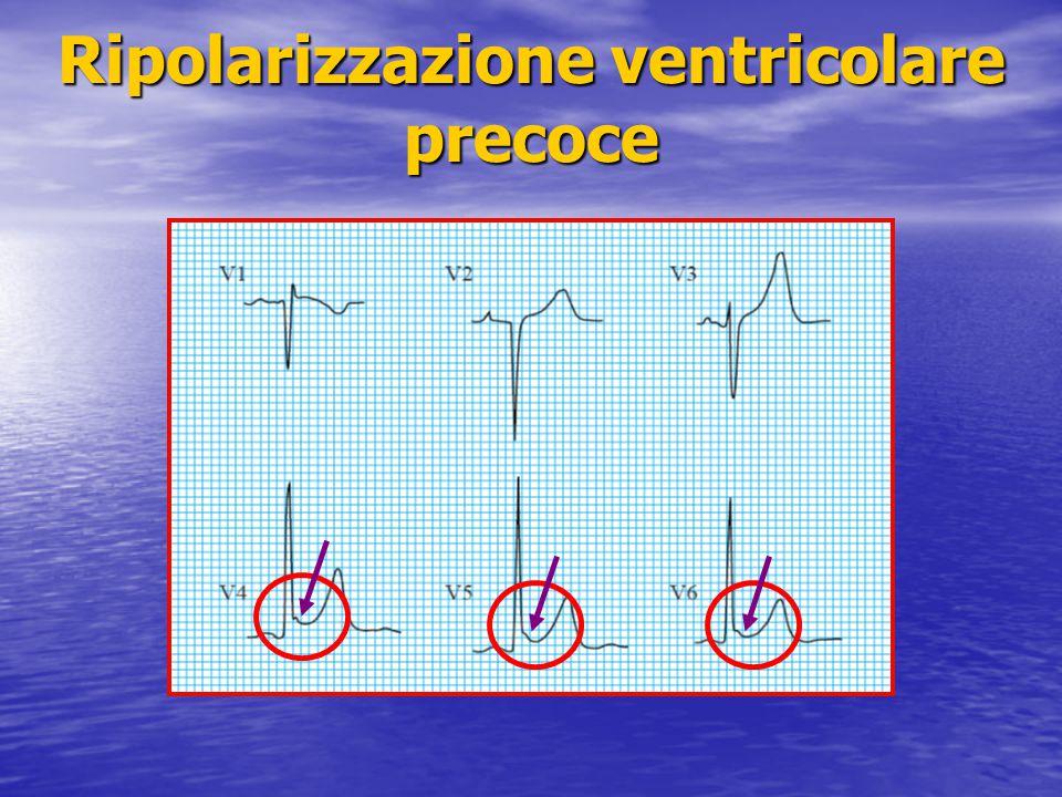 Ripolarizzazione ventricolare precoce